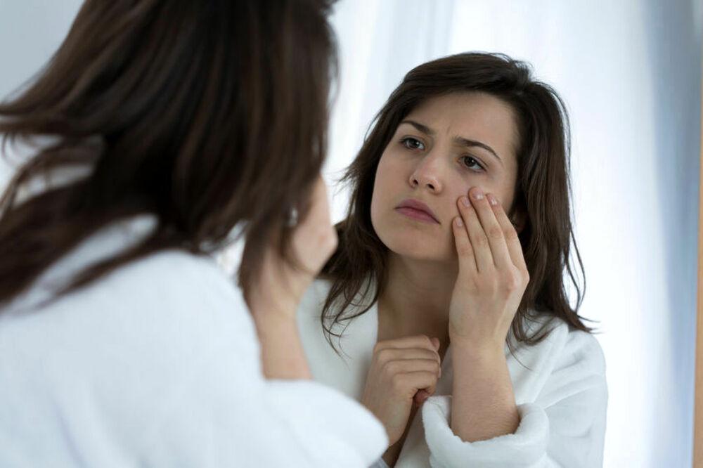 Occhiaie: come eliminarle in maniera defintiva